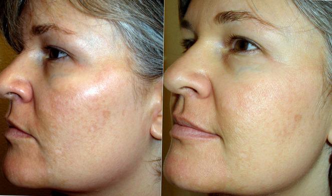 До и после альгинатной маски
