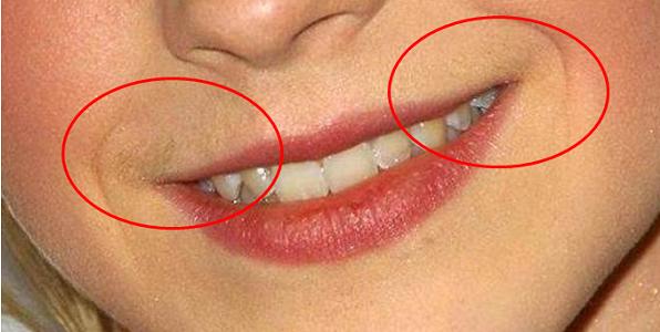 Как удалить волос над верхней губой навсегда в домашних условиях