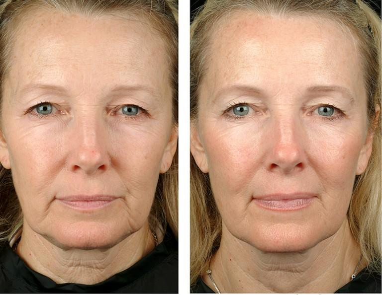 health and beauty крем вокруг глаз от морщин отзывы
