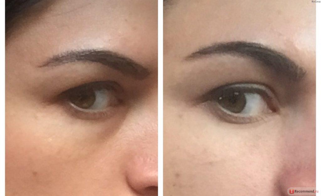 убрать морщины под глазами инъекции