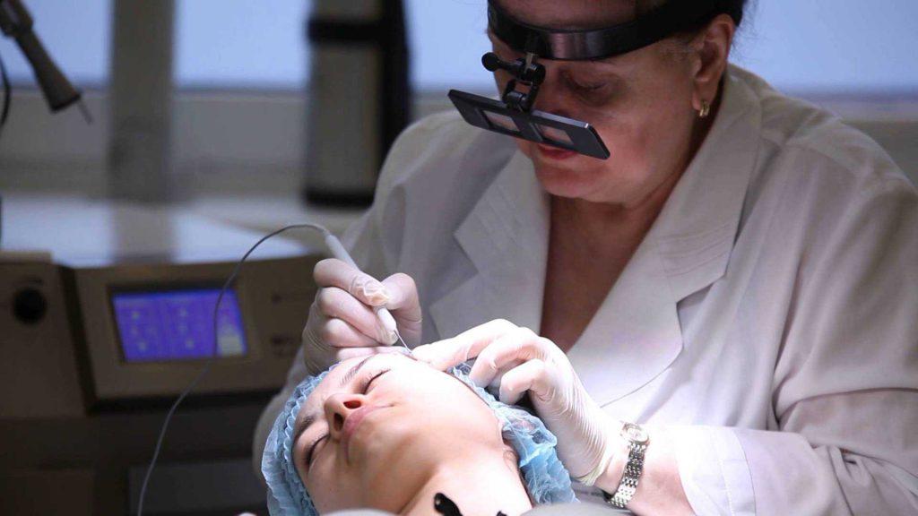 дерматолог удаляет радиоволной