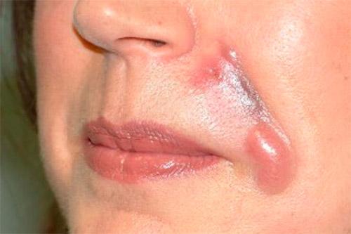 Гиперкоррекция носогубных складок