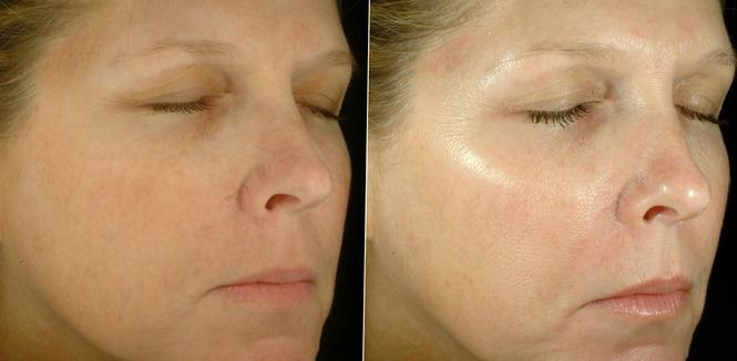 Результат применения альгинатной маски