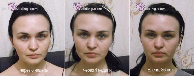 Фото с сайта: face-building.com